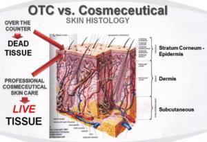 OTC vs COS