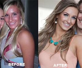 masha-before-after