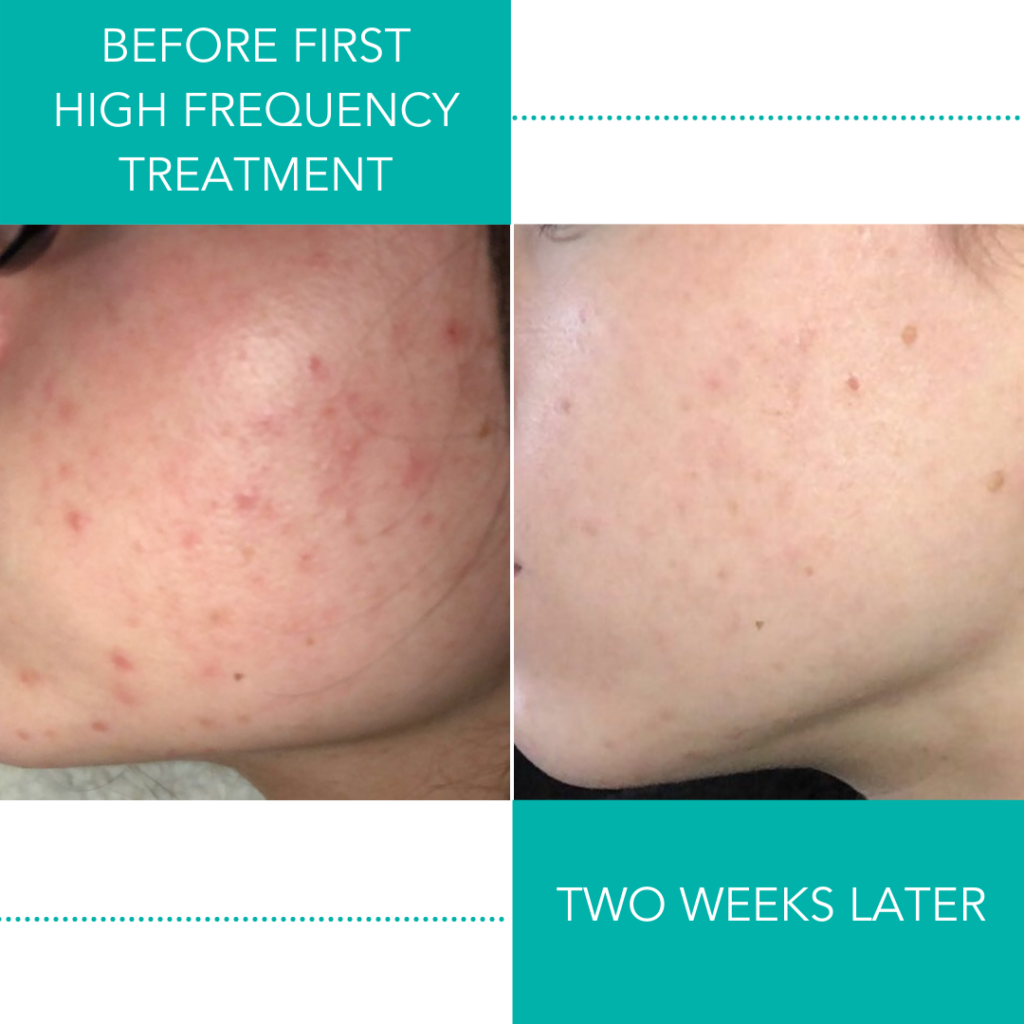 IMAGE OF Before First High Frequency Treatment